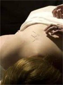 Las Vegas Sciatica Acupuncture Pain Relief | Spring Mtns ...